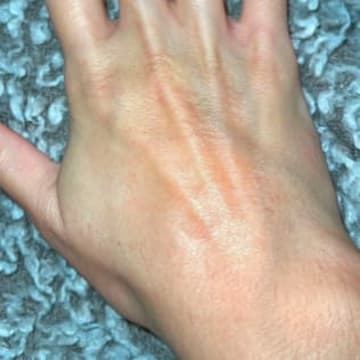the back of a woman's hand healed with unscented goat milk lotion