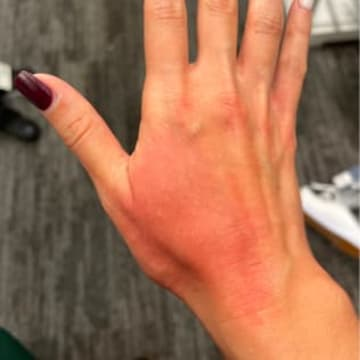 The back of a woman's hand showing inflammation and eczema